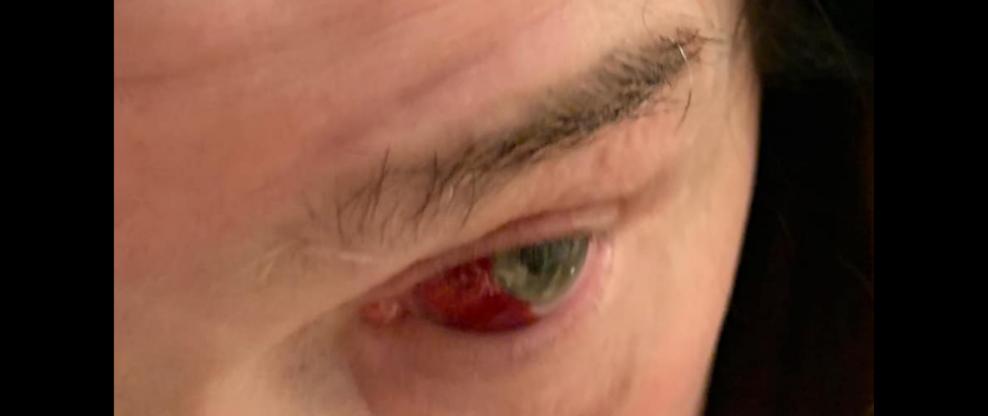 Ozzy Osbourne Breaks His Eye